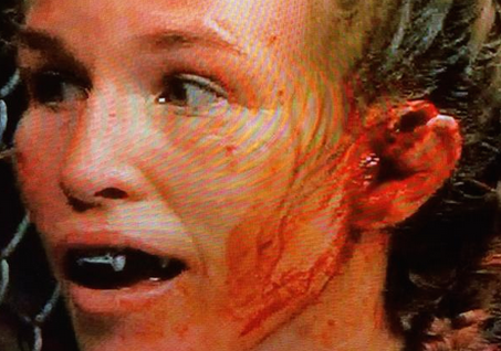 Leslie Smith's Ear Following her UFC 180 bout with Jessie Eye (Twitter photo/@ZProphet_MMA)